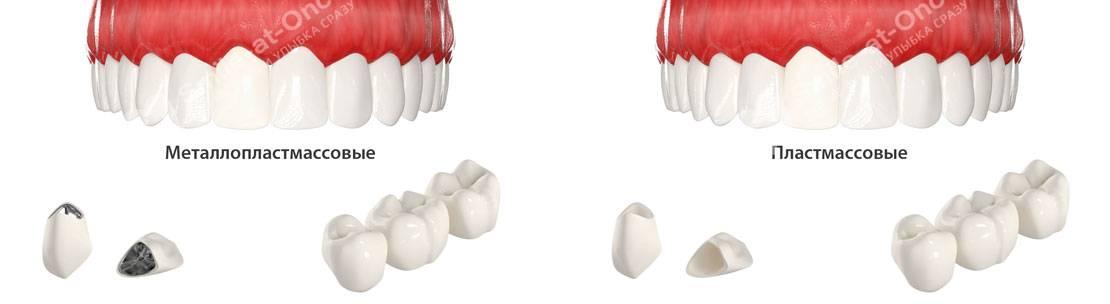 Пластмассовая коронка на зуб