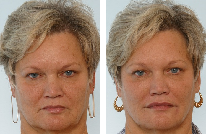 Диспорт – отзывы, фото до и после, инструкция по применению, цена