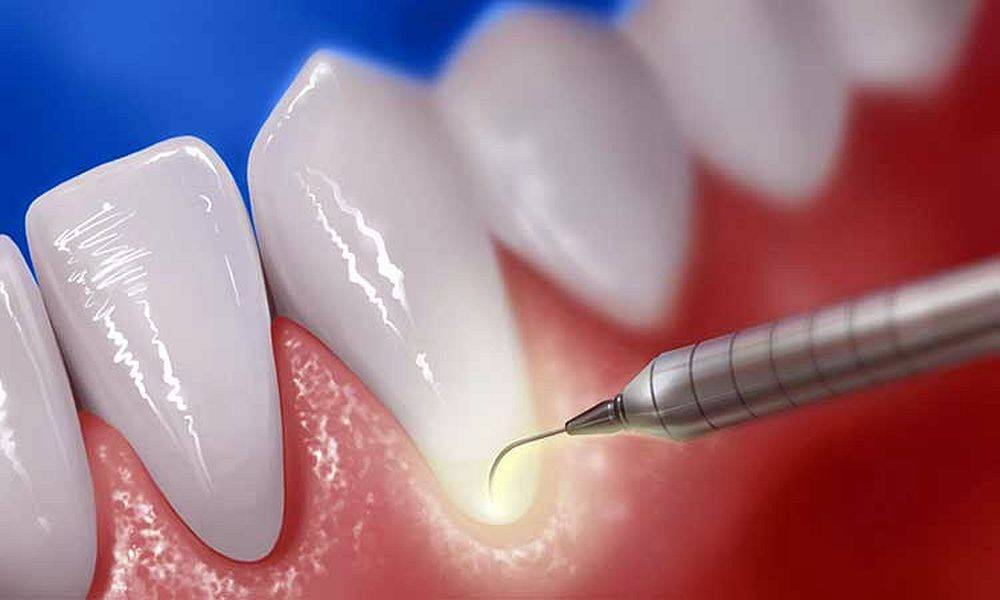 Как делают профессиональную чистку зубов – профимед