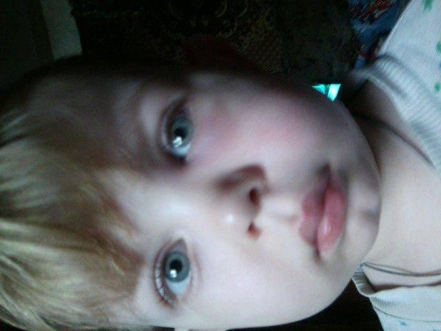 У ребенка опухла щека с одной стороны и болит зуб