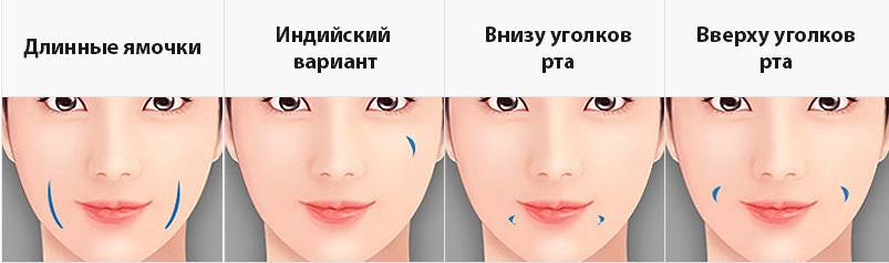 Как сделать ямочки на щеках?