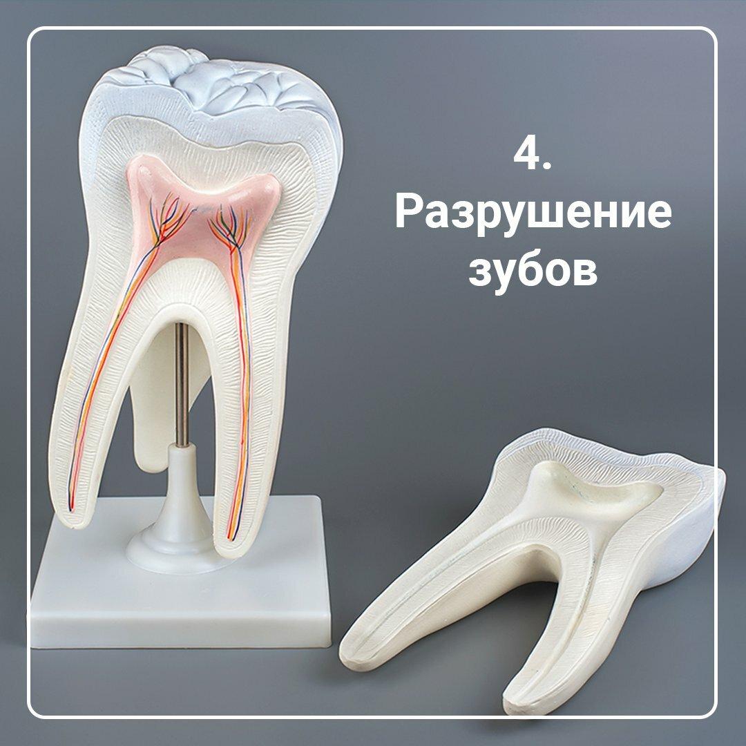 Ранняя потеря зубов: кариес, травмы и еще 3 причины