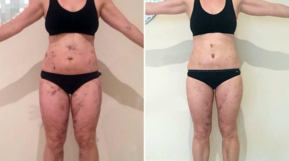 Кавитация. отзывы до и после, фото тела, что это такое, противопоказания и побочные действия || какой гель нужен для кавитации