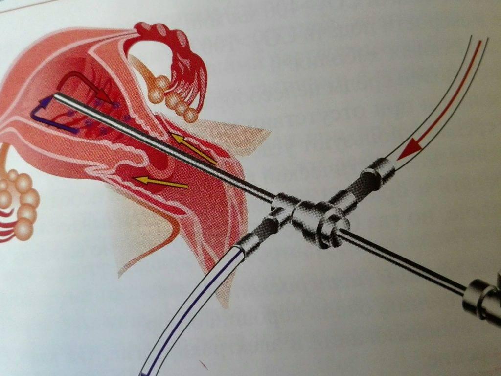Удаление полипов матки с помощью лазера: преимущества, подготовка, ход операции, противопоказания