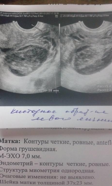 Киста желтого тела при беременности на ранних сроках