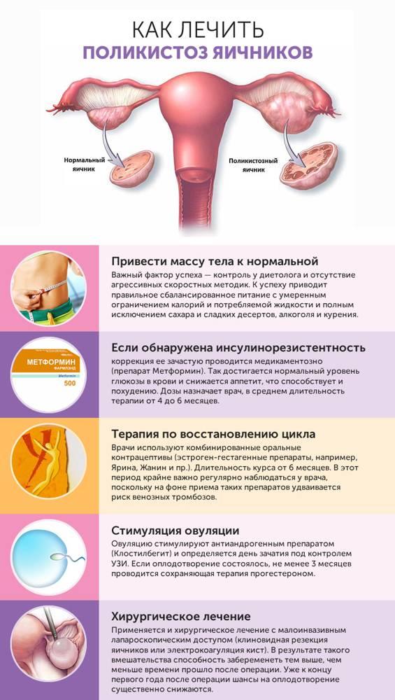 Какой должна быть диета при поликистозе яичников