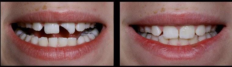 Народная примета «зубы»