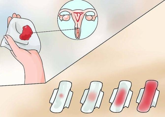 Как лечить зубы во время месячных