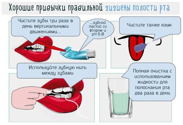 Что делать, если появился запах изо рта после удаления зуба?