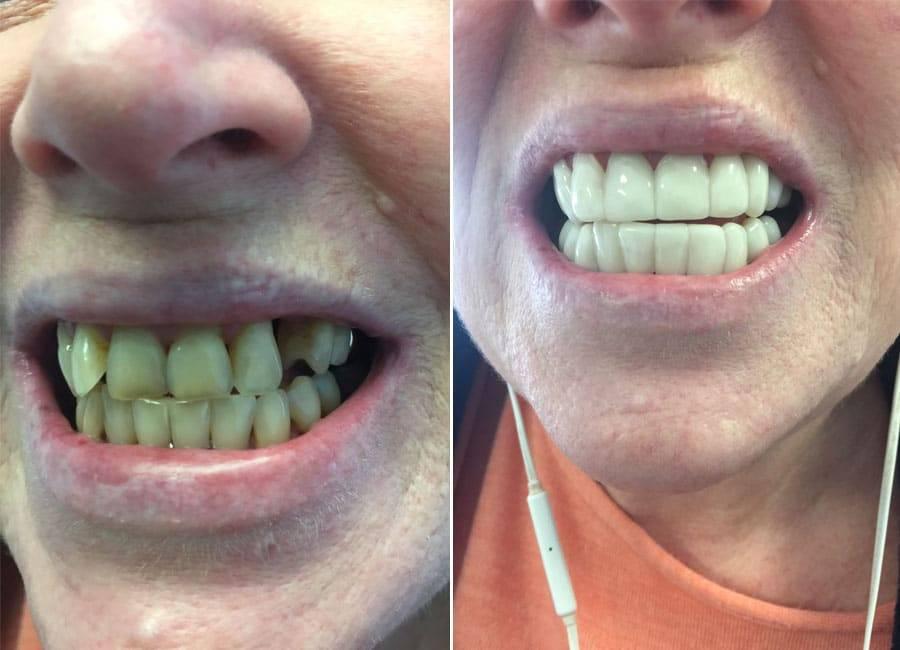 Как выровнять кривые зубы и исправить прикус с помощью виниров, фото до и после установки