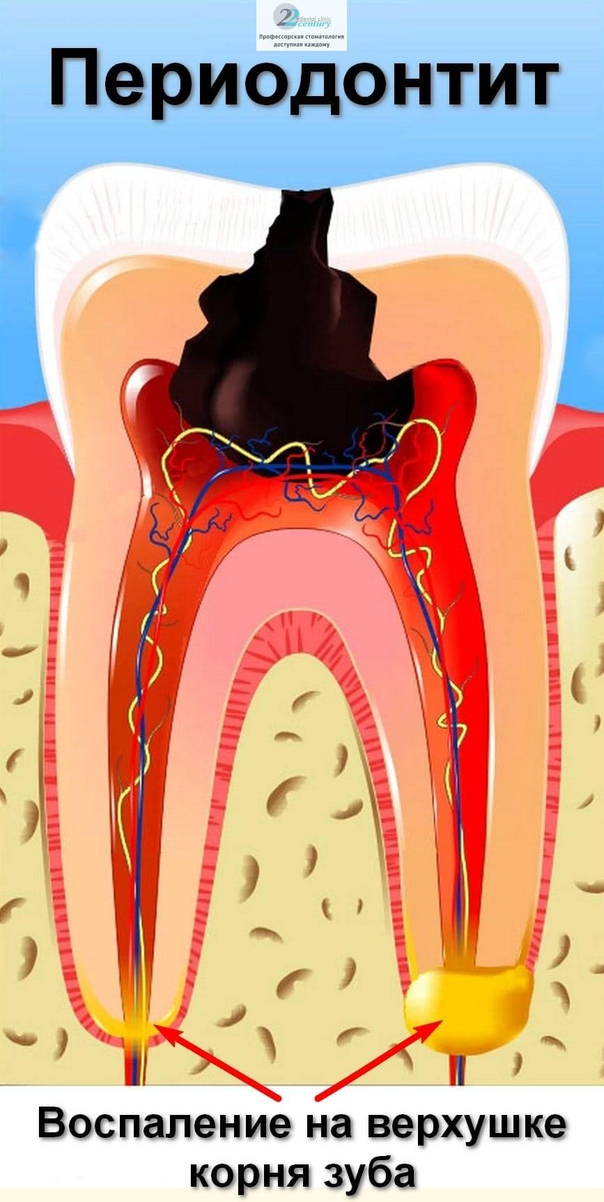 Что такое вторичный кариес и как его лечить
