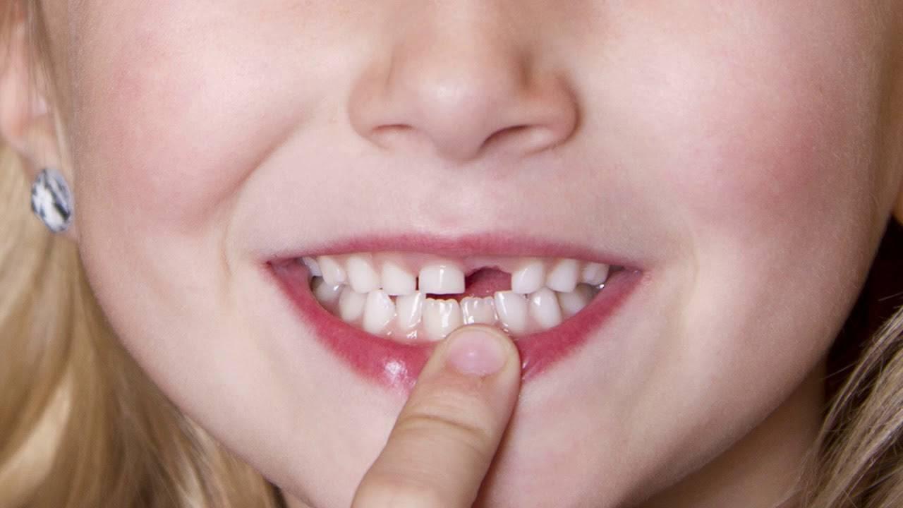 Выпал молочный зуб, а новый не растет