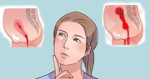 Как идут месячные при климаксе? месячные во время менопаузы
