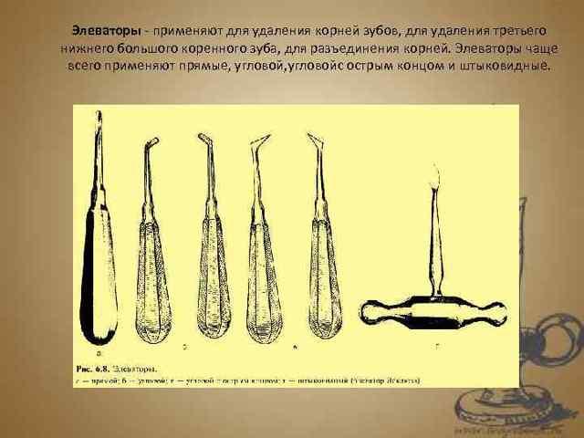 Операция удаления ретинированных и дистопированных зубов