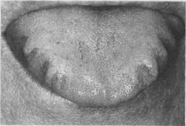 Отпечатки зубов на языке причины и болит