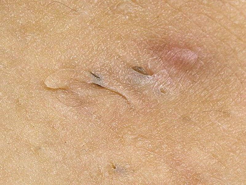 Контагиозный моллюск у женщин: симптомы и методы лечения