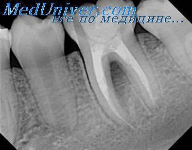 Причины перелома зуба