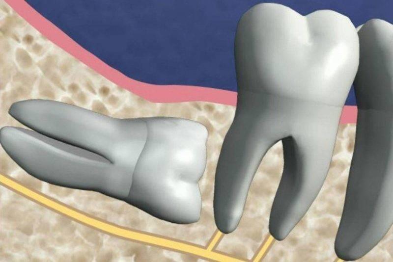 Зачем стоматологу экскаватор? что такое сложное удаление зуба