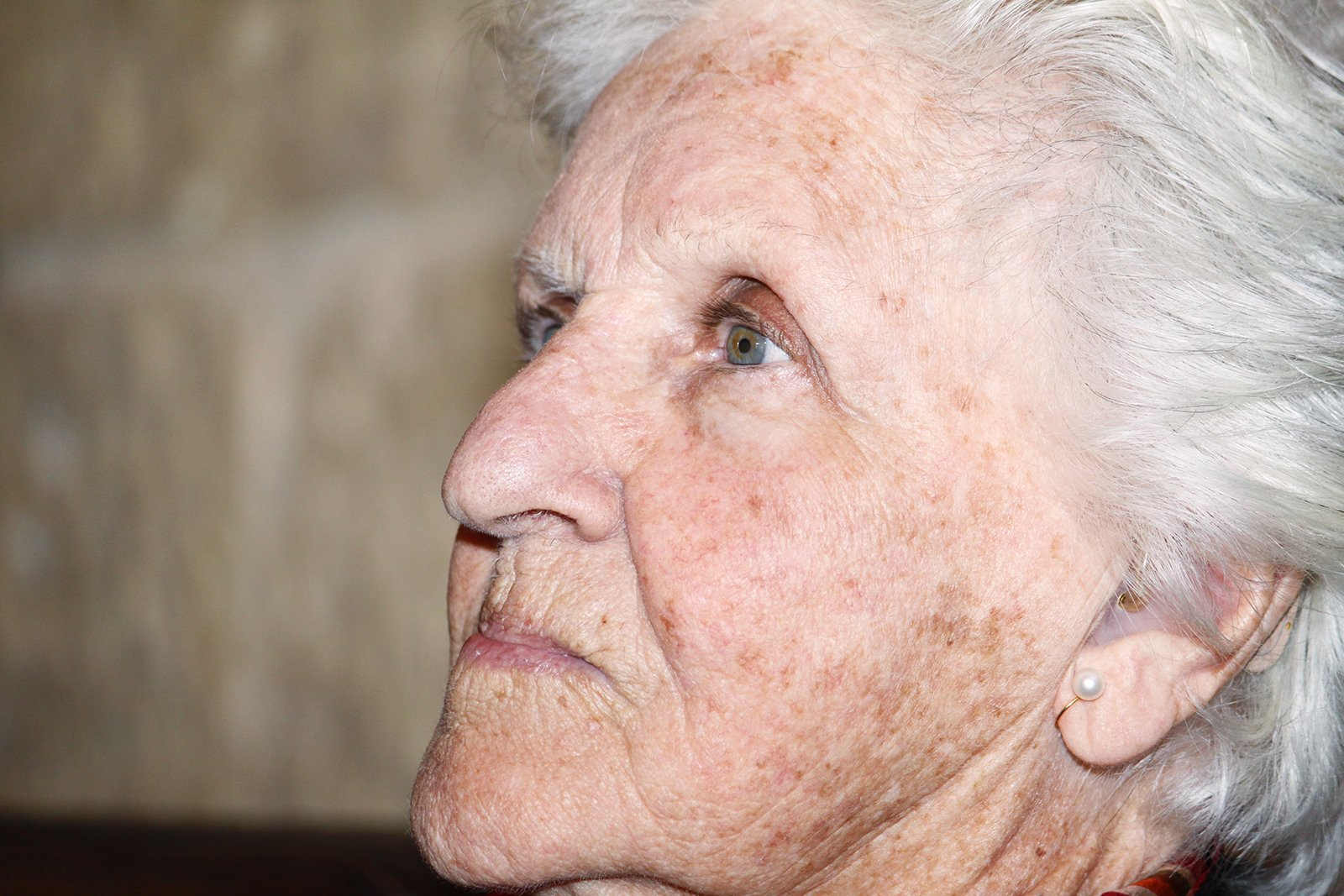Как избавиться от старческих пигментных пятен на лице