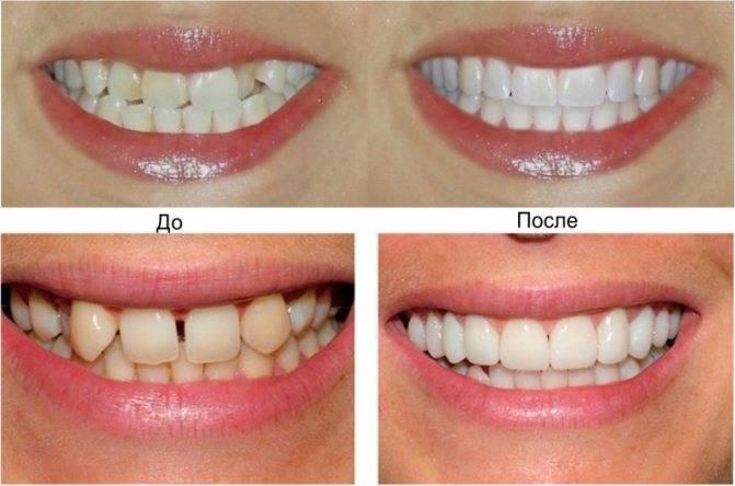 Чем отличается ортодонт от ортопеда