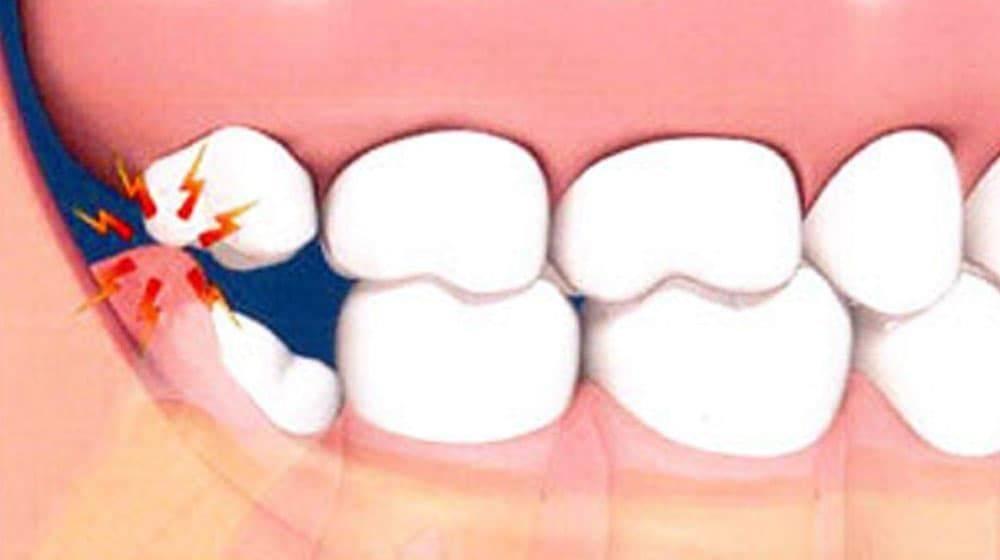 Как удаляют корень, если только он остался в десне, а зуб полностью разрушен и раскрошился?