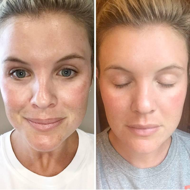 тиогамма в косметологии фото до и после говорят рукодельницы, вышивание