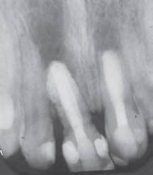 Минеральный триоксидный агрегат в общей стоматологической практике