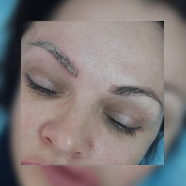 Преимущества и недостатки удаления татуажа губ ремувером и лазером