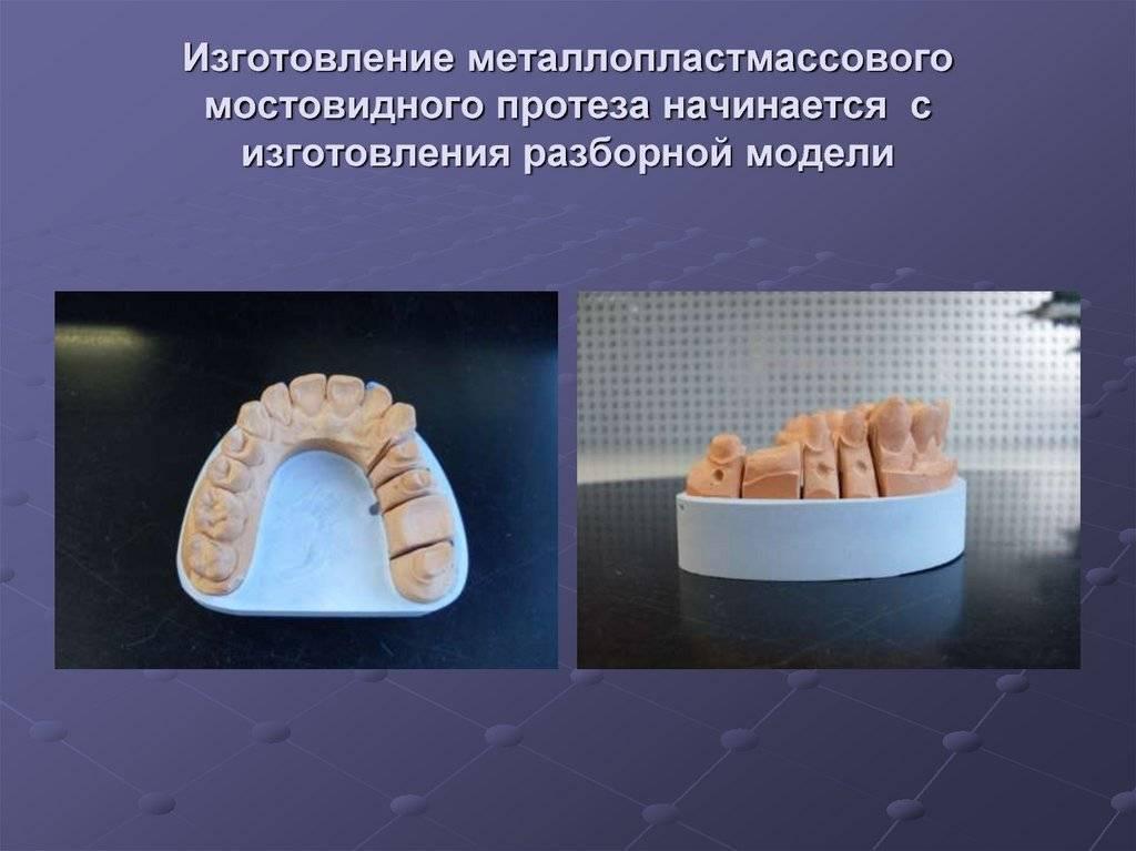Цельнолитые мостовидные протезы — высокая прочность зубного ряда