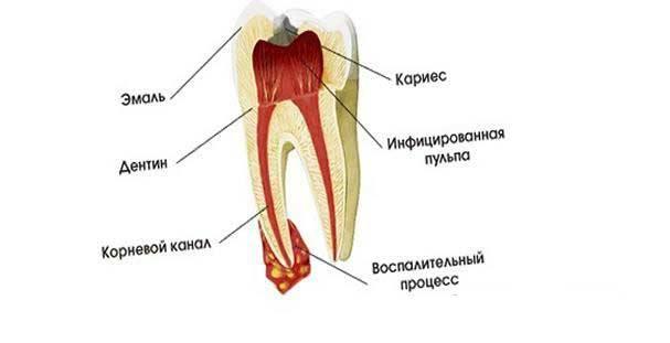 Как в домашних условиях успокоить зубной нерв?