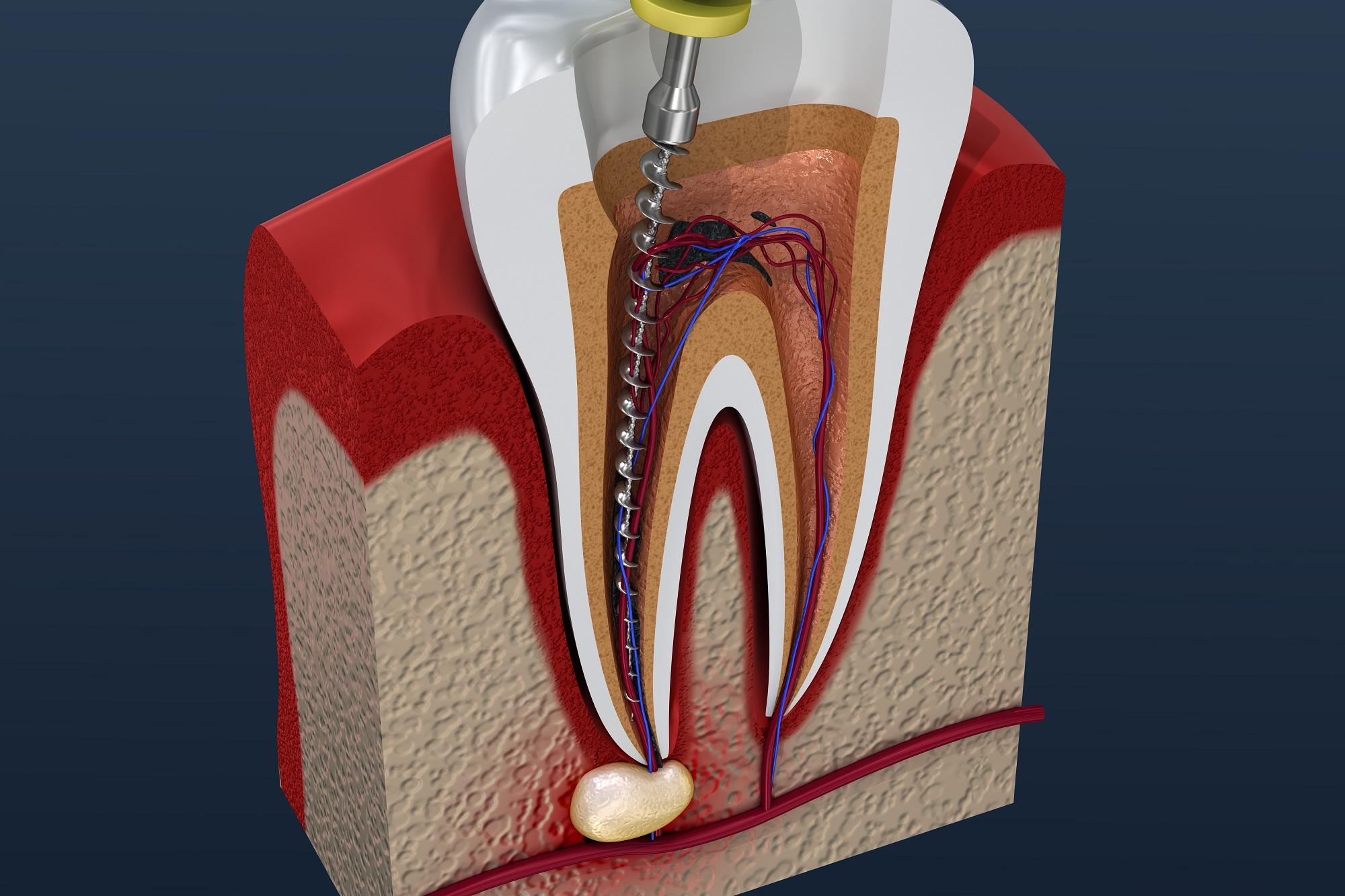 Пломбировочные материалы для корневых каналов