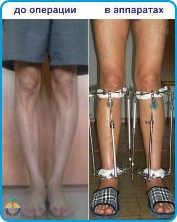 Как исправить кривизну ног: упражнения, которые помогут