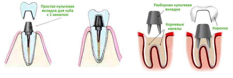 Что такое зубная культевая вкладка в стоматологии, обзор цен