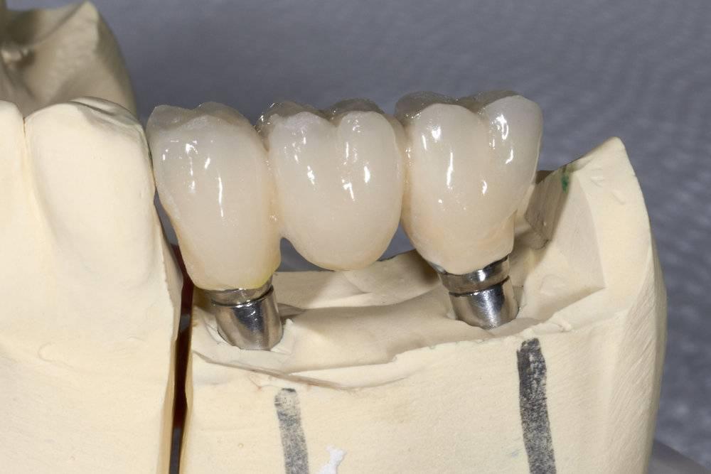 Изготовление слепка зубов в москве