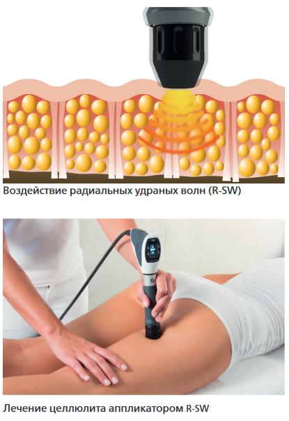 Ударно-волновая терапия в лечении целлюлита — опыт турции