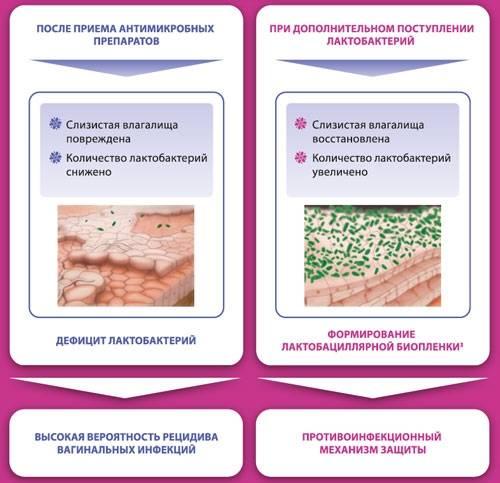 Бактериальный вагиноз у женщин: причины и лечение