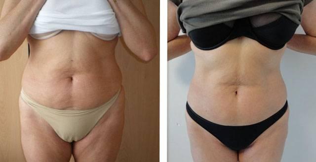 Инъекции для похудения — действие и цена жиросжигающих препаратов