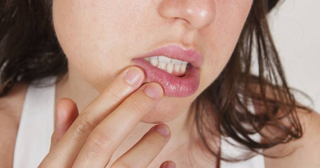 Белый налет на губах: возможные причины у взрослых