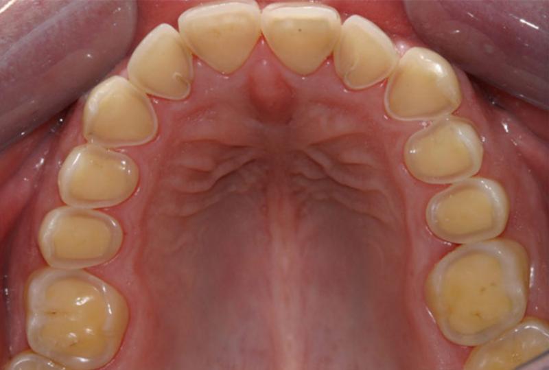 Почему болит небо во рту: причины, методы лечения и профилактики