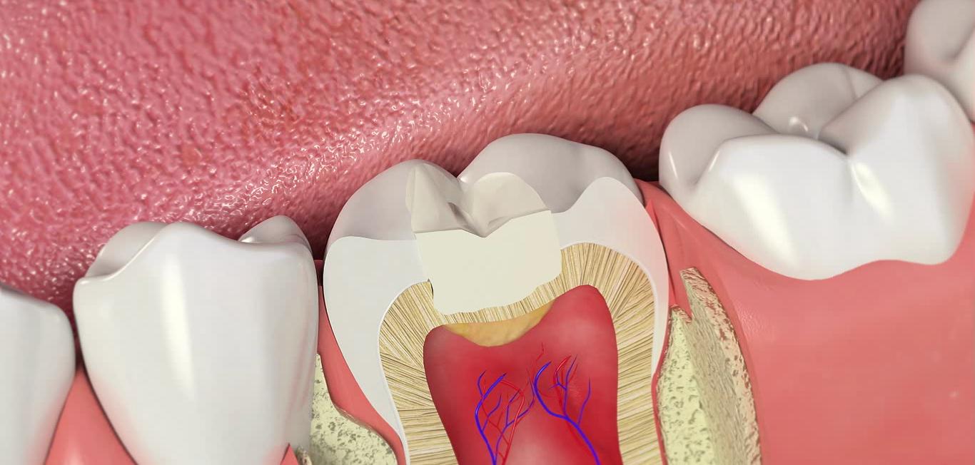 Современные методы пломбирования зубов