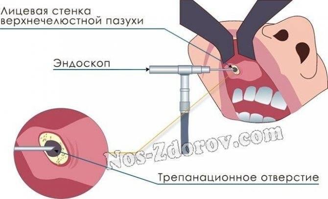 Оперативное вмешательство на гайморовых пазухах: виды гайморотомии, техника проведения, обзор отзывов