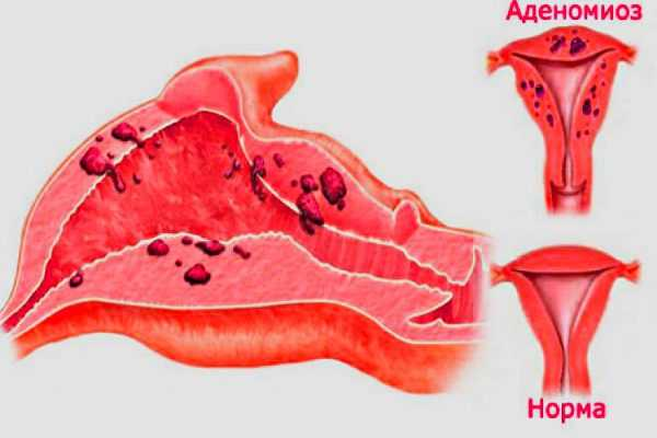 Менструация со сгустками (кусками) – причины пугающего явления