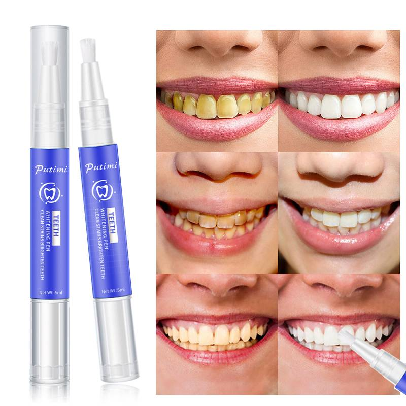 Революция в стоматологии - капы для отбеливания зубов сделают улыбку неотразимой
