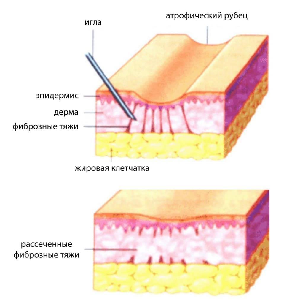 Атрофический рубец на лице причины, особенности и методы лечения