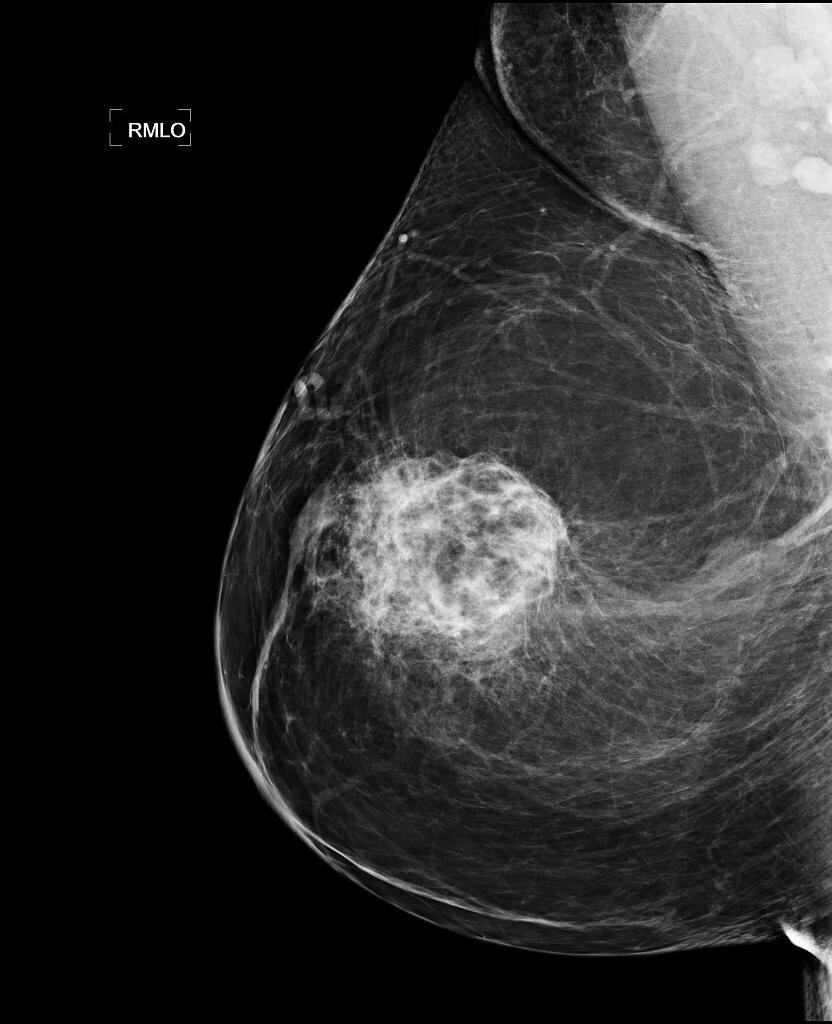 Фиброма в груди: особенности развития и лечения