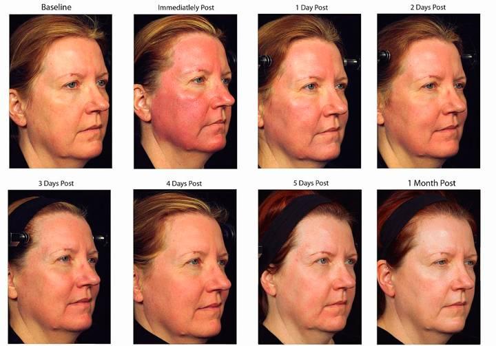 Лазерное удаление сосудов на лице. отзывы, фото до и после неодимовым лазером, фотовспышкой, элос. противопоказания, последствия