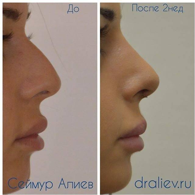 Восстановление после пластики носа