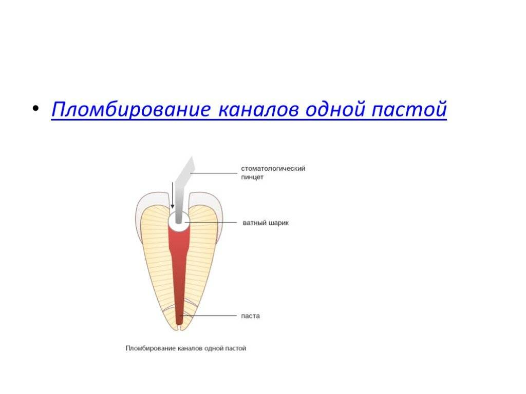 Эндодонтическое лечение корневых каналов зубов
