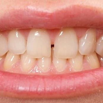 Как подпиливают зубы