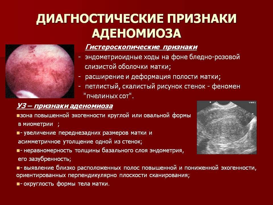 Как распознать симптомы эндометриоза матки?